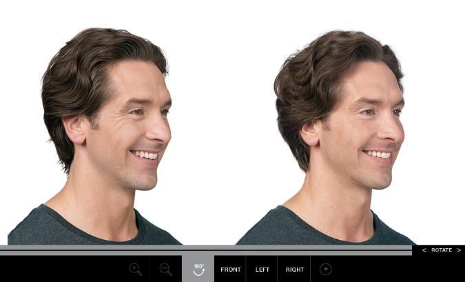 Allergan's Botox sets its sights on a new customer: men
